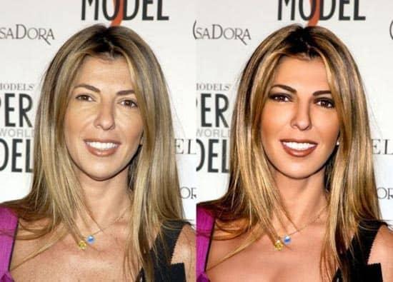 Avant/après les retouches de Photoshop - 10